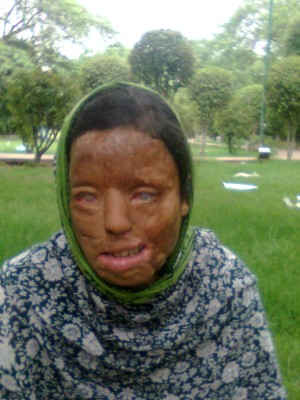 A beautiful life of Sonali Mukherjee melted away in an acid attack